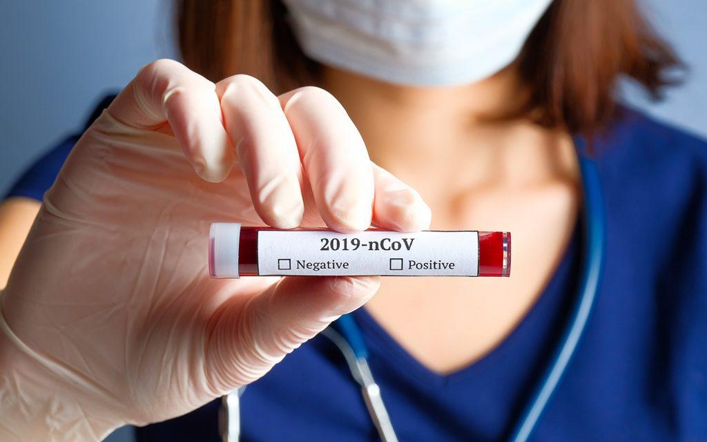 ممرضة تحمل أنبوب اختبار لتحليل الدم