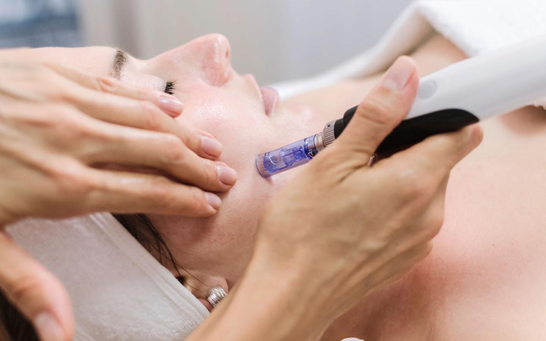 Woman going through laser skin treatment in Dubai