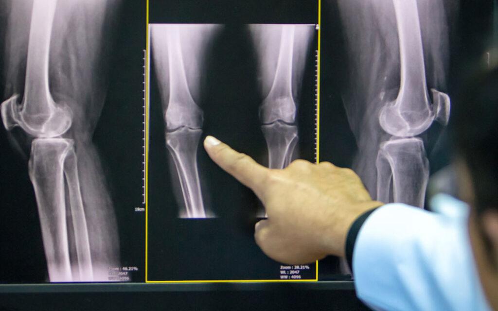 طبيب أمام الأشعة السينية لركبة المريض
