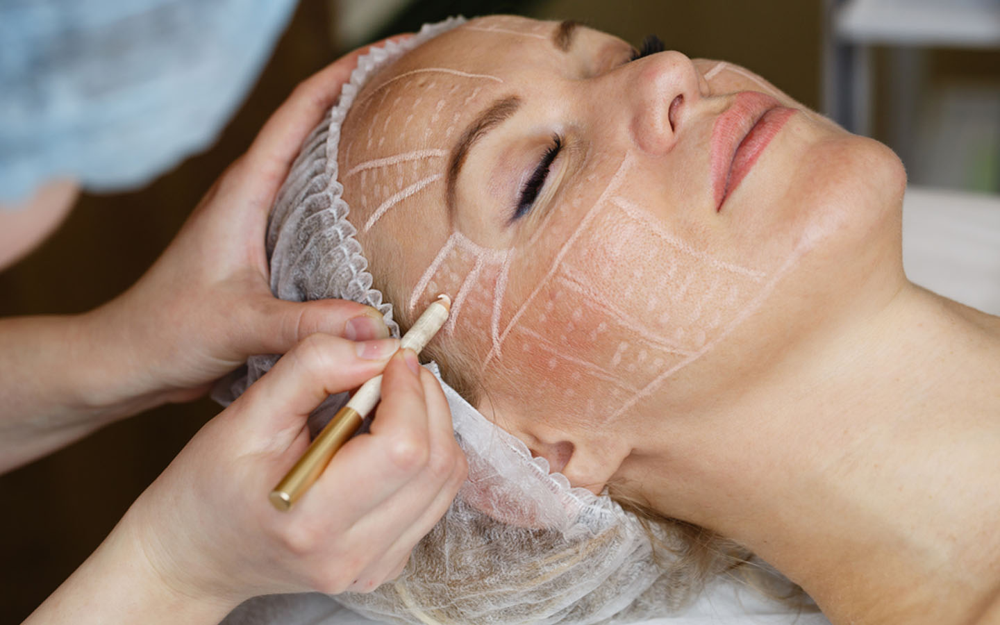 Non-surgical face lifting at a skin clinic in Dubai